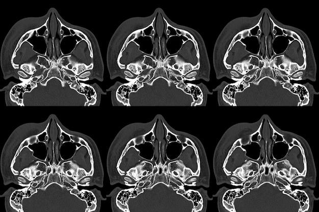 Tomografia computerizzata (tac) di fratture orbitali spostate a livello della parete laterale e mediale dell'orbita destra.