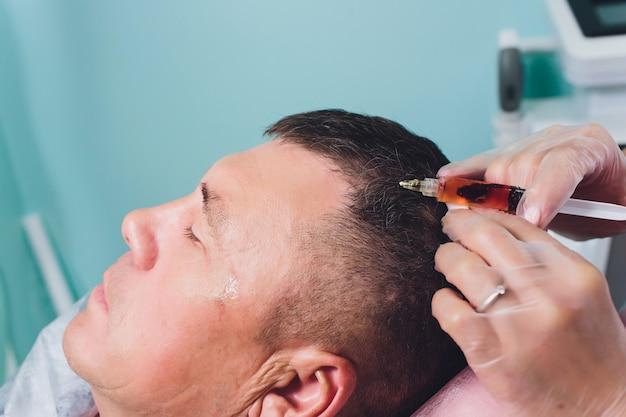 Trattamento della calvizie con iniezioni di bellezza. le mani del cosmetologo in guanti fanno un'iniezione sottocutanea. paziente maschio plasmalifting.