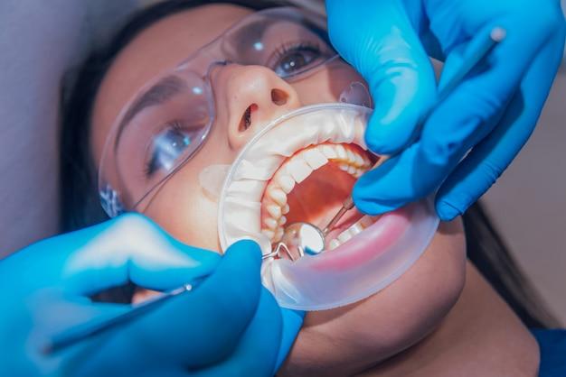 Trattamento dentale con espansore. tecnologia moderna