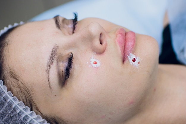 Trattamento di rimozione del comedone dell'acne sul viso della donna