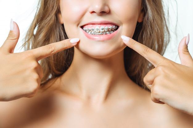 Trattamento ortodontico. concetto di cure odontoiatriche. fine sana di sorriso della bella donna in su. staffe di ceramica e metallo del primo piano sui denti. bel sorriso femminile con parentesi graffe.