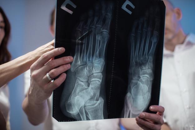 Tre medici esaminano insieme una foto dei raggi x di un paziente