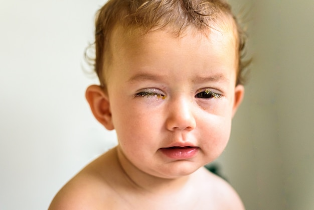 Un bambino con gli occhi pieni di reum