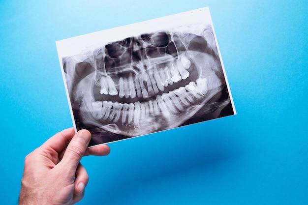 Un dentista in possesso di un'istantanea del dente del paziente e indica il problema.