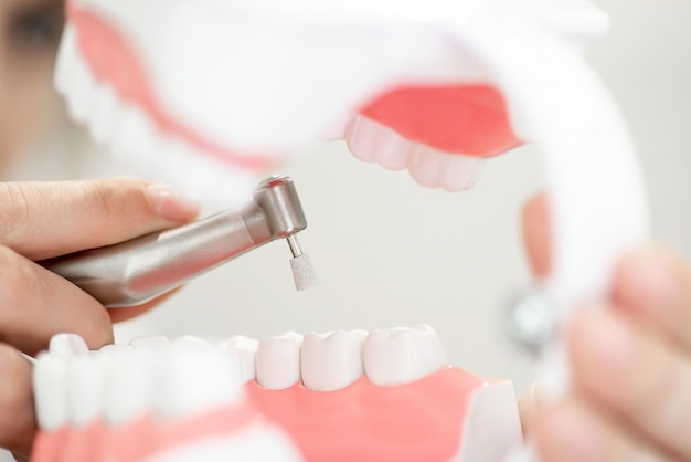 Un ricevimento nell'ufficio del dentista, che pulisce lo smalto dei denti
