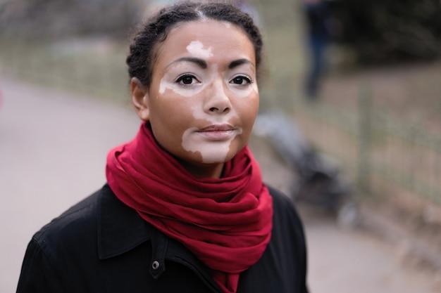 Una bella ragazza di etnia africana con vitiligine in piedi sulla strada di città calda primavera vestito cappotto nero