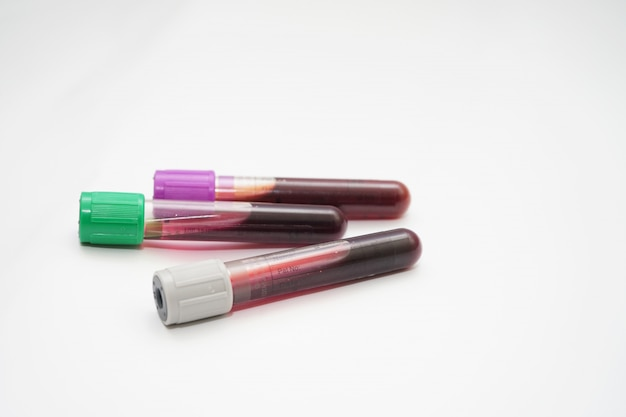 Una bottiglia di campione di sangue