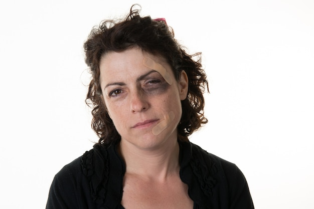 Una donna abusata isolata su bianco