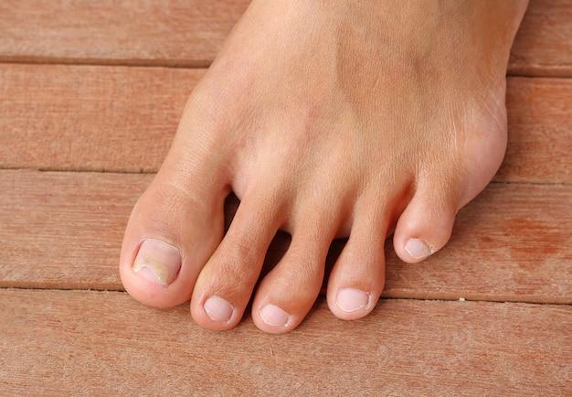 Unghia del piede danneggiata, unghie rotte