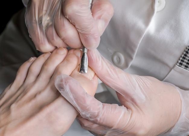 Unghie dei piedi cattive. trattamento unghie, pedicure nel salone di bellezza.
