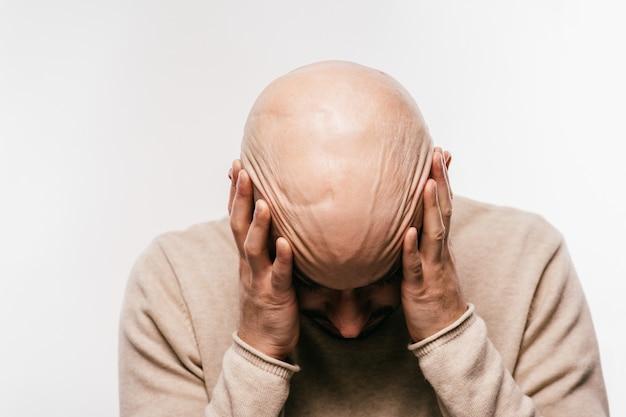 Uomo calvo che tiene la testa in stress psicologico