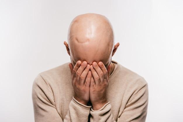 Uomo calvo con cicatrice in testa dopo un'operazione di oncologia che piange e nasconde il viso con le mani.