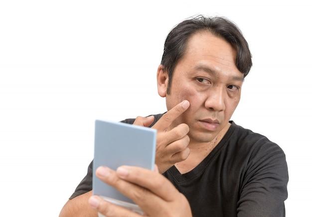 Uomo che applica la crema sul viso con melasma