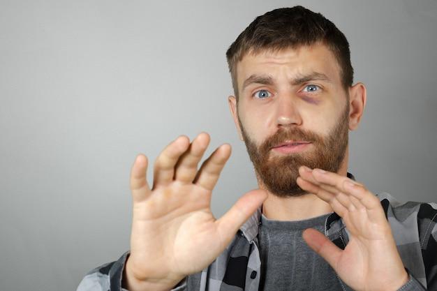 Uomo con un vero livido agli occhi