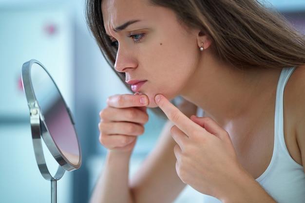 Upset ha sottolineato la donna triste dell'acne con la pelle problematica stringe il brufolo a casa davanti a un piccolo specchio rotondo
