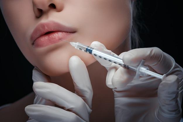 Vista alta vicina dettagliata di un'iniezione del labbro