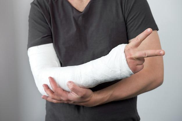 Vista del primo piano della mano d'uomo con calco in gesso su un muro bianco
