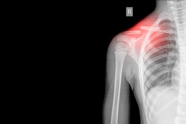 Viste ap per raggi x della spalla destra che mostra la frattura della cavicola centrale sul segno rosso, concetto di immagine medica. e spazio accogliente.