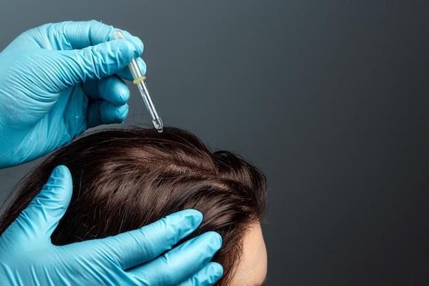 Vitamine per la crescita dei capelli. mani del medico del primo piano con un contagocce dalla perdita di capelli. salute, cura del corpo, stile di vita.