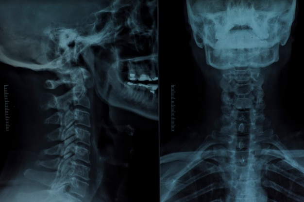 X raggio di una testa umana
