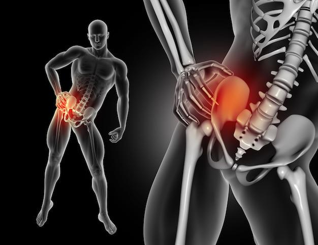 3d figura masculina segurando quadril de dor