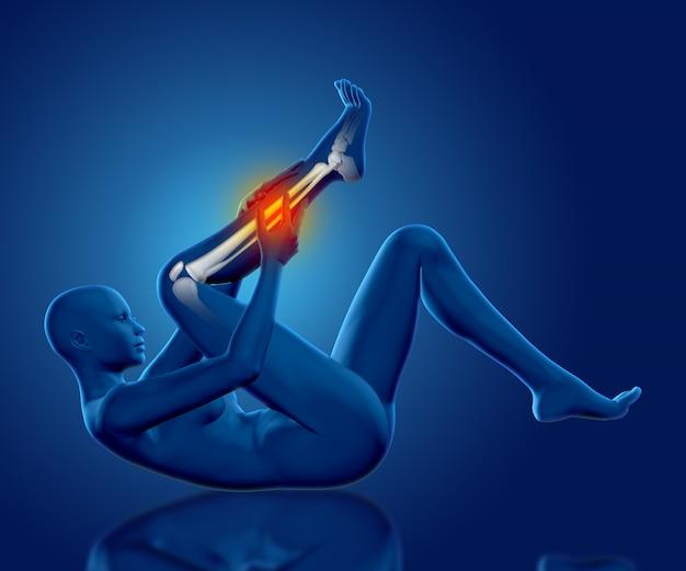 3d figura médica feminina segurando a perna em dor