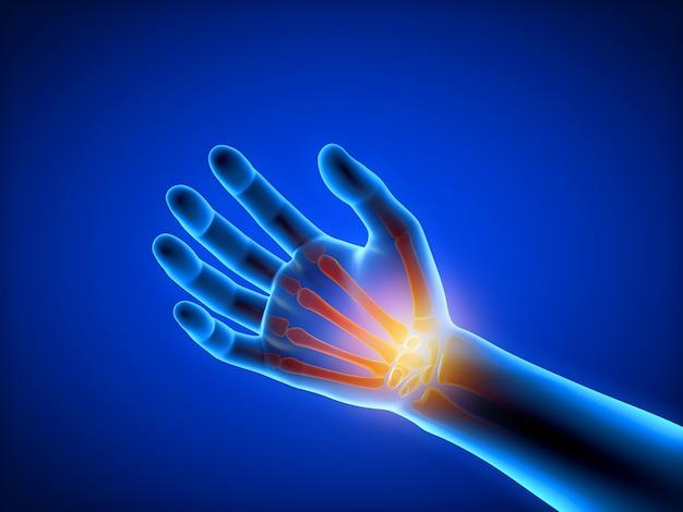3d rendeu a ilustração de um homem que tem uma mão dolorosa
