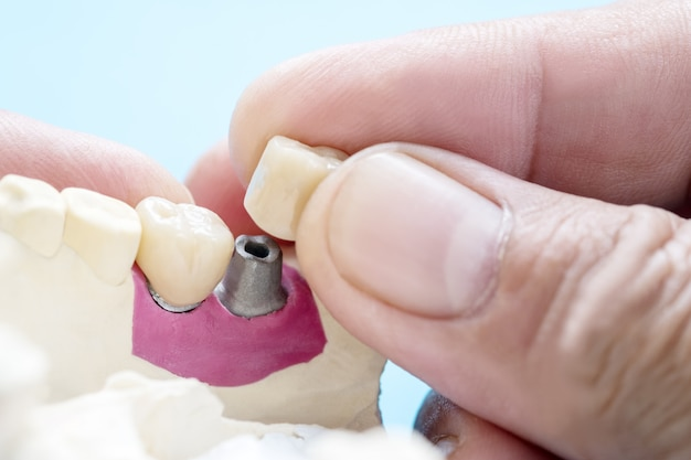 A coroa dentária e a ponte implantam equipamentos de odontologia e restauração expressa do modelo.
