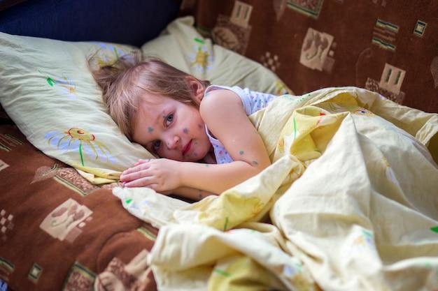 A criança que tem catapora está em uma cama e tem um descanso