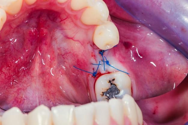 A gengiva é suturada com fio dental especial na incisão cirúrgica para acomodar o implante dentário