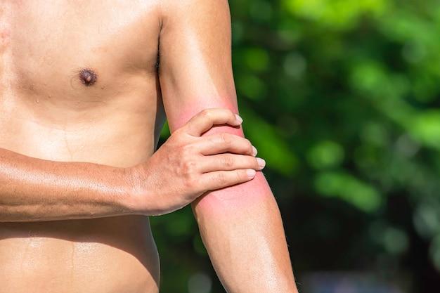 A mão agarra o braço que a inflamação de uma lesão esportiva.