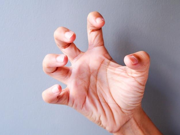 A mão da mulher asiática com espasmos mão e as contrações musculares posturam, mão tensa.