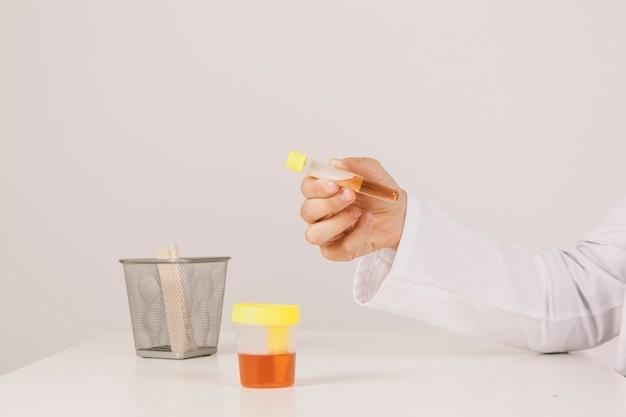 A mão do médico faz testes com urina