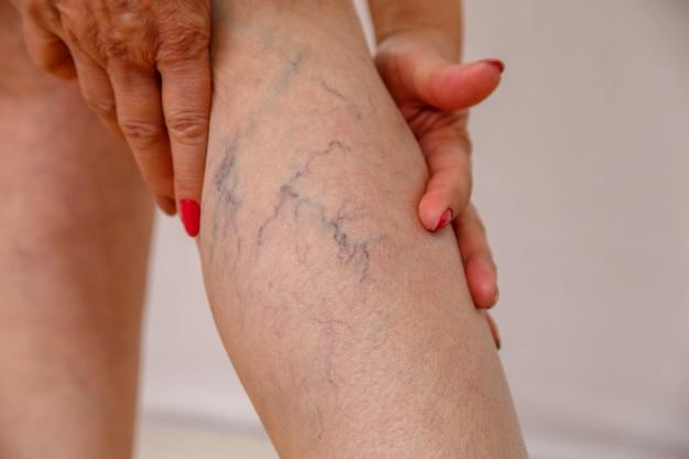 A mulher idosa na cuecas branca mostra as celulites e as veias varicosas em um fundo isolado luz.
