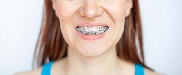 A mulher sorri, mostrando seus dentes brancos com aparelho. até os dentes de usar aparelho. o conceito de dentista e ortodontista.