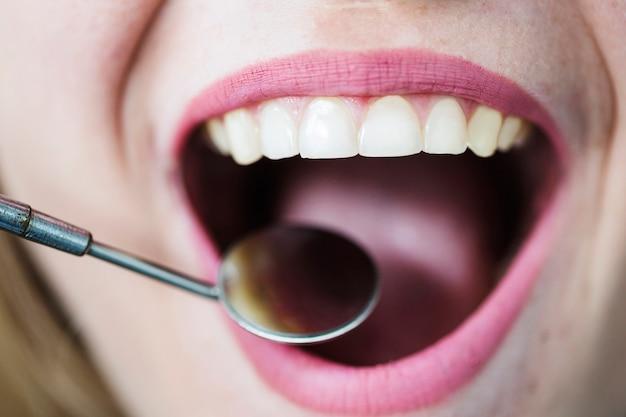 Abra a boca da mulher com espelho de dentista