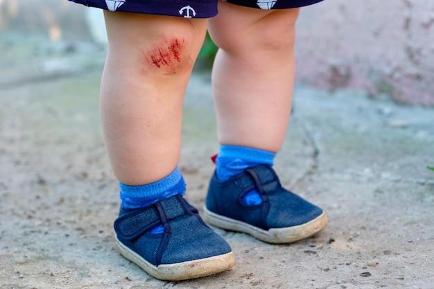 Abrasão de sangue no joelho como resultado da queda no asfalto em um pequeno menino europeu