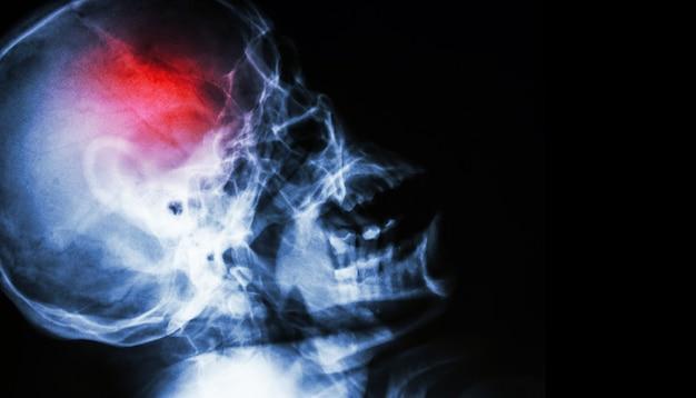 Acidente vascular encefálico . acidente vascular cerebral . crânio de raio-x do filme.