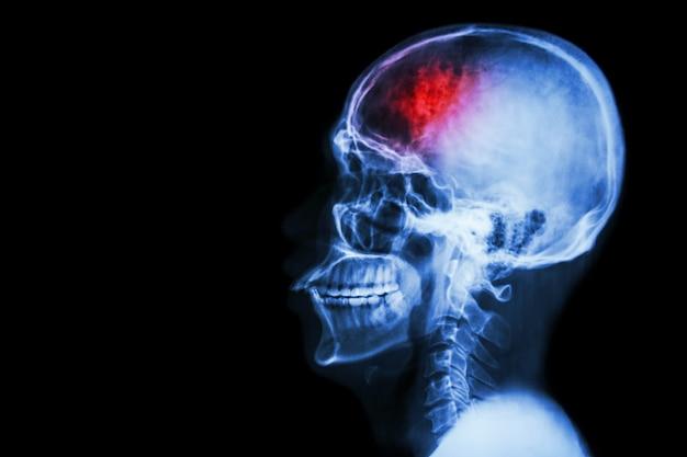 Acidente vascular encefálico. acidente vascular cerebral. filme de raio-x do crânio e pescoço humano