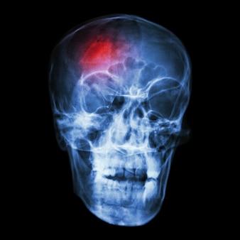 Acidente vascular encefálico . acidente vascular cerebral . filme de raio-x do crânio humano.