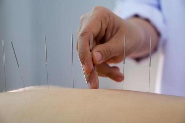 Acupuntura. mulheres que fazem o tratamento de costas e acupuntura no salão