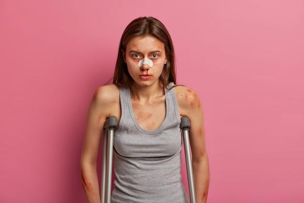 Adolescente ferido com vários hematomas, hematoma após acidente