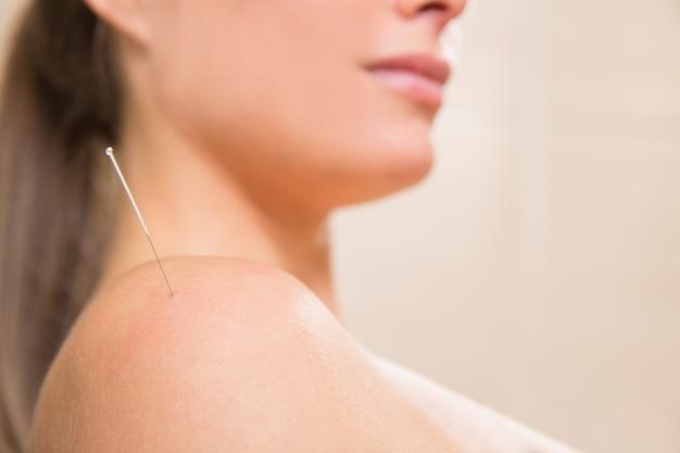 Agulha de acupuntura espetando no ombro da mulher