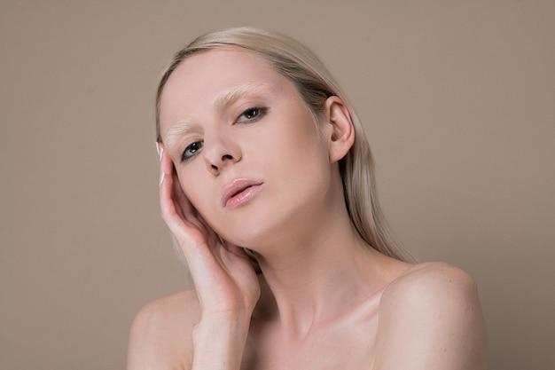 Albinismo. foto de uma menina loira com pigmentação na cintura