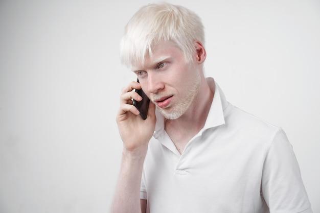 Albinismo homem albino