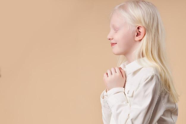 Albino. menina bonitinha caucasiana com síndrome de albinismo