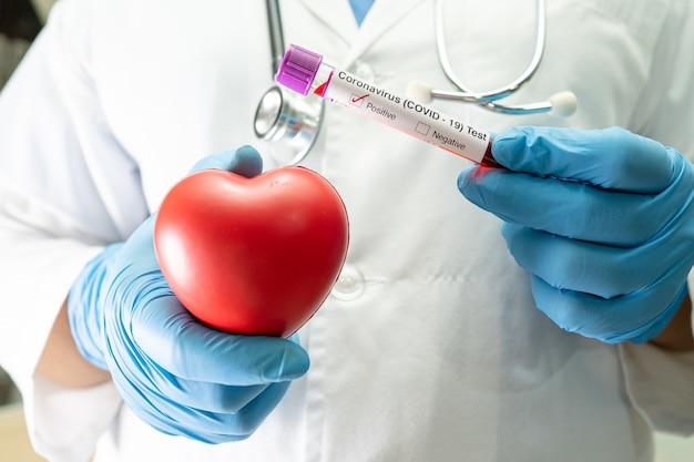 Amostra de infecção de sangue positiva em tubo de ensaio para coronavírus covid19 em laboratório