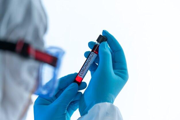 Amostra de sangue infectado por coronavírus covid 19 em tubo de amostra na mão de um cientista com roupas de proteção contra risco biológico no laboratório de pesquisa de covid covid 19 com coronavírus,