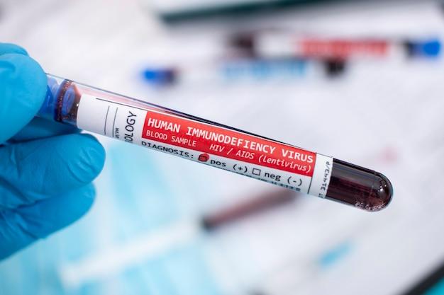 Amostras de sangue com vírus infectado