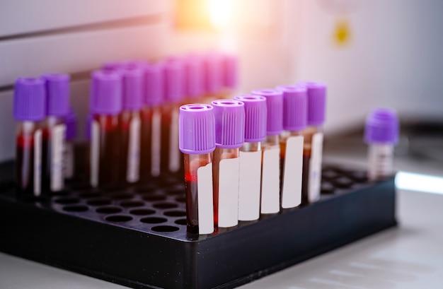 Amostras de sangue para pesquisa em microtubos. testes em laboratório. pesquisa química. prevenção. diagnóstico de pneumonia. covid-19 e identificação de coronavírus. pandemia.